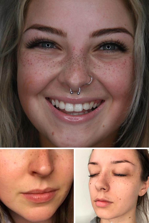 Freckle Tattoo Ideas