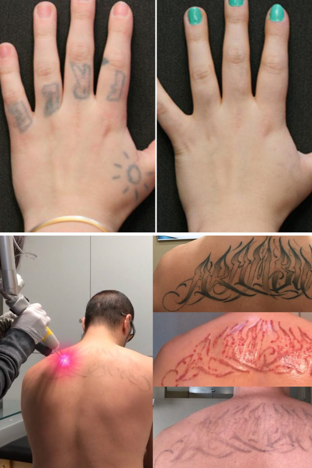 Does tattoo removal leave a scar