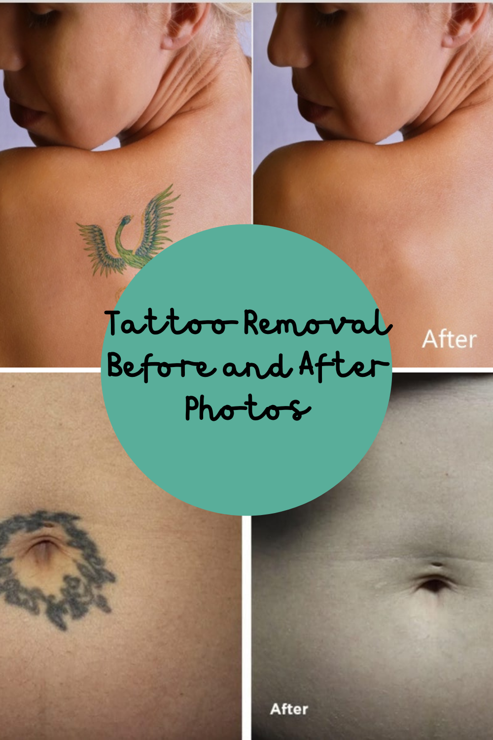 Tattoo Removal before & after images
