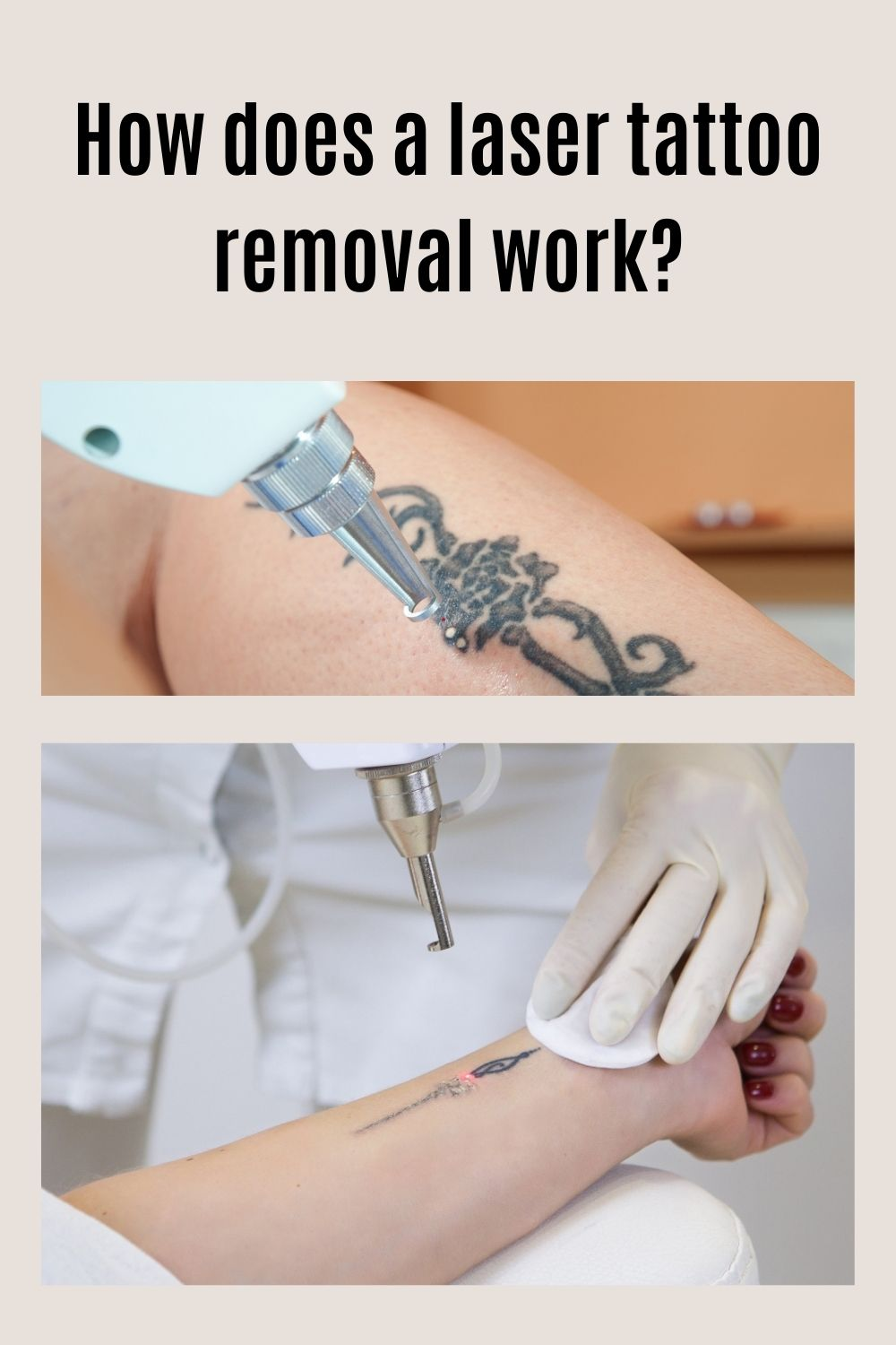 Does Laser Tattoo Removal work