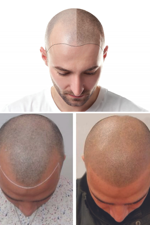 Hair Pigmentation Inspiration